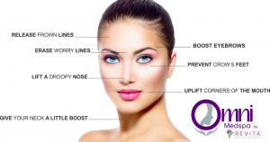 Diagram showing places you can get Botox injected