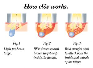 diagram of how elos plus ipl works on skin