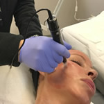 micro needling with prp