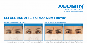 Before and after Xeomin injections