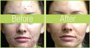 celluma before and after
