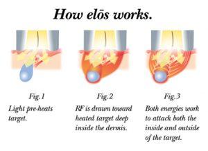diagram of how elos plus ipl works on skin
